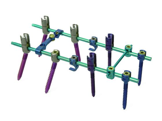 脊柱后路5.5钉棒系统